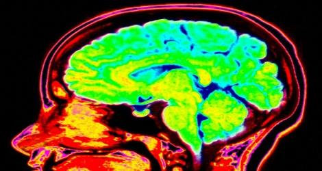 Patrones de reactividad cerebral en la ansiedad generalizada